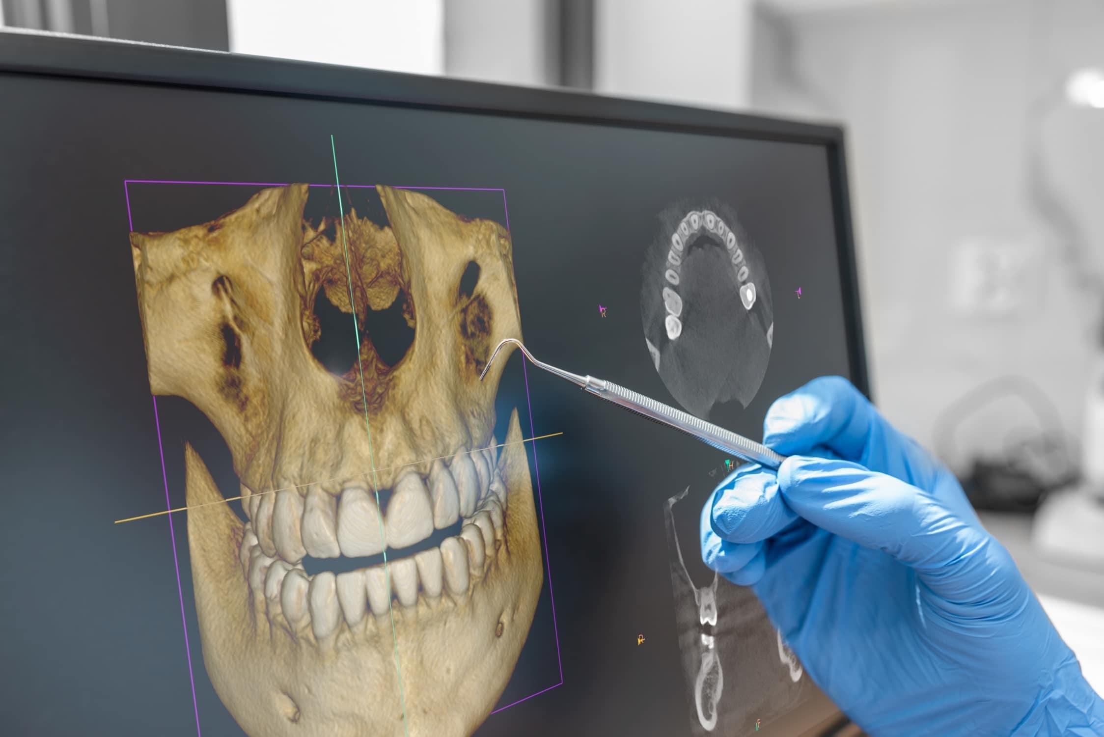 Dreidimensionales DVT-Röntgenbild – von allen Seiten einsehbar, drehbar, selbst kleinste Details erkennbar
