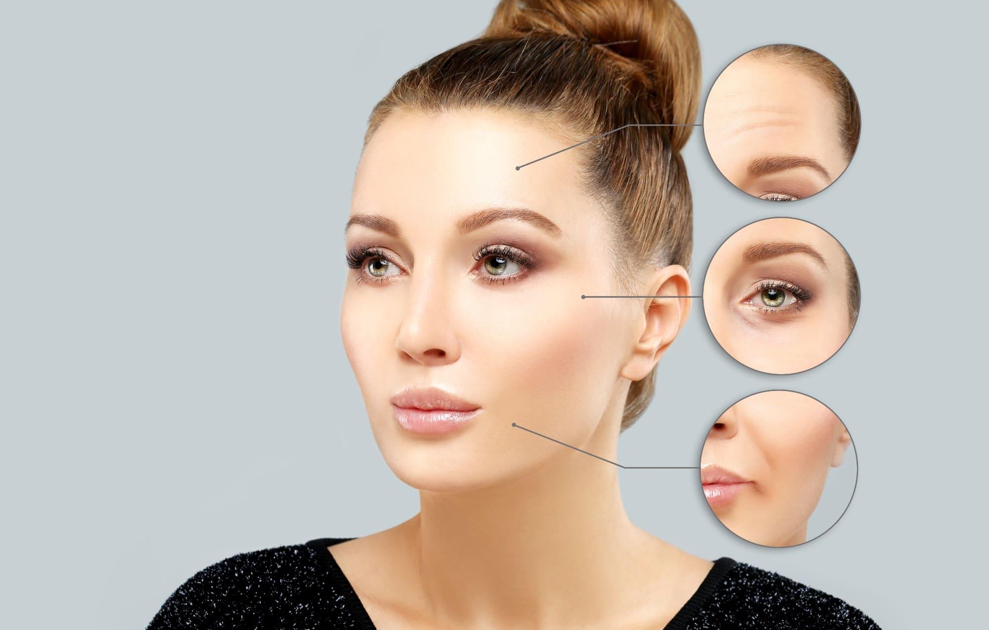 Botox Behandlungsgebiete