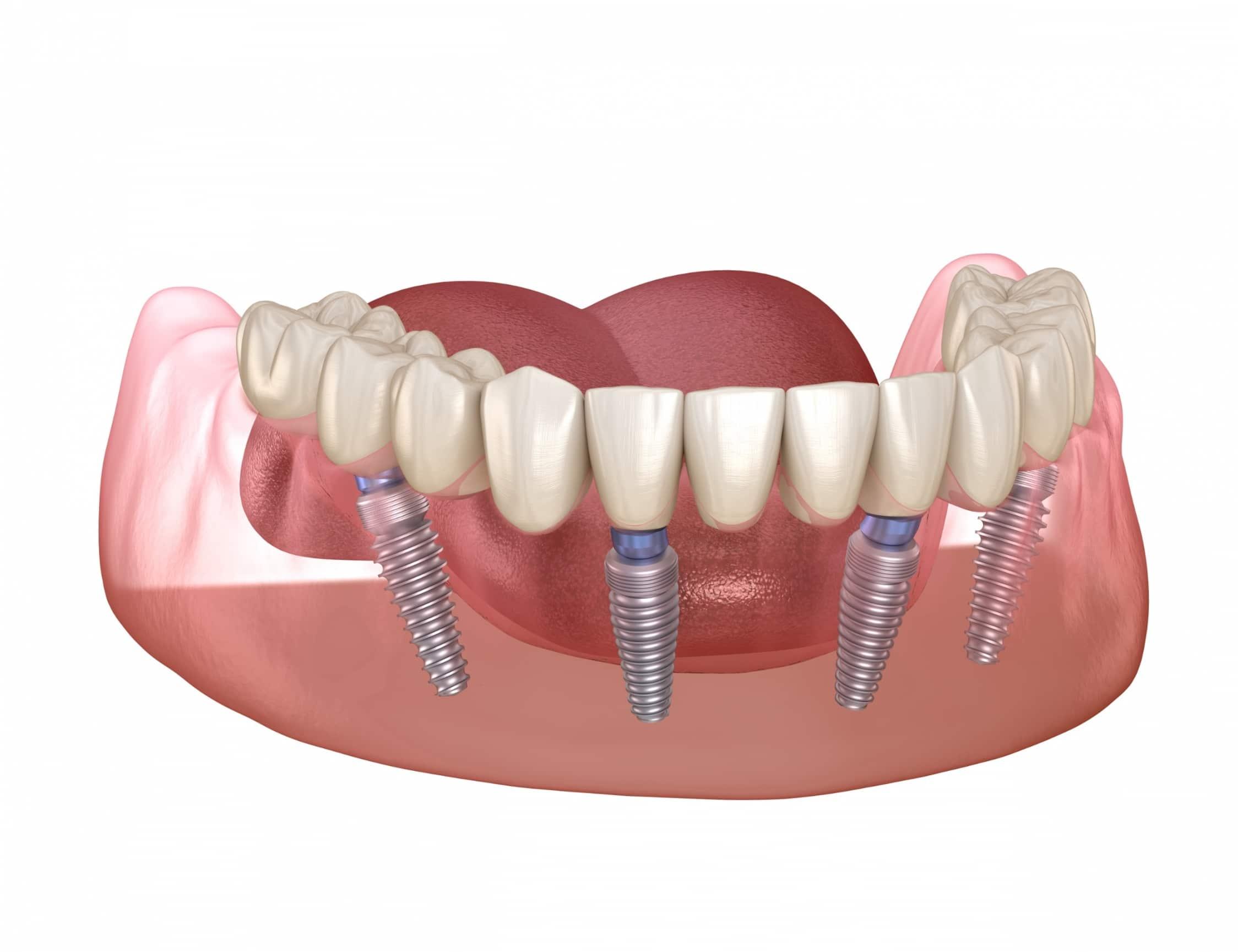 Feste Dritte Zähne an einem Tag. Die Implantate werden in einer speziellen Anordnung und in einem bestimmten Winkel eingesetzt. 2 im hinteren Zahnbereich 2 im vorderen Zahnbereich