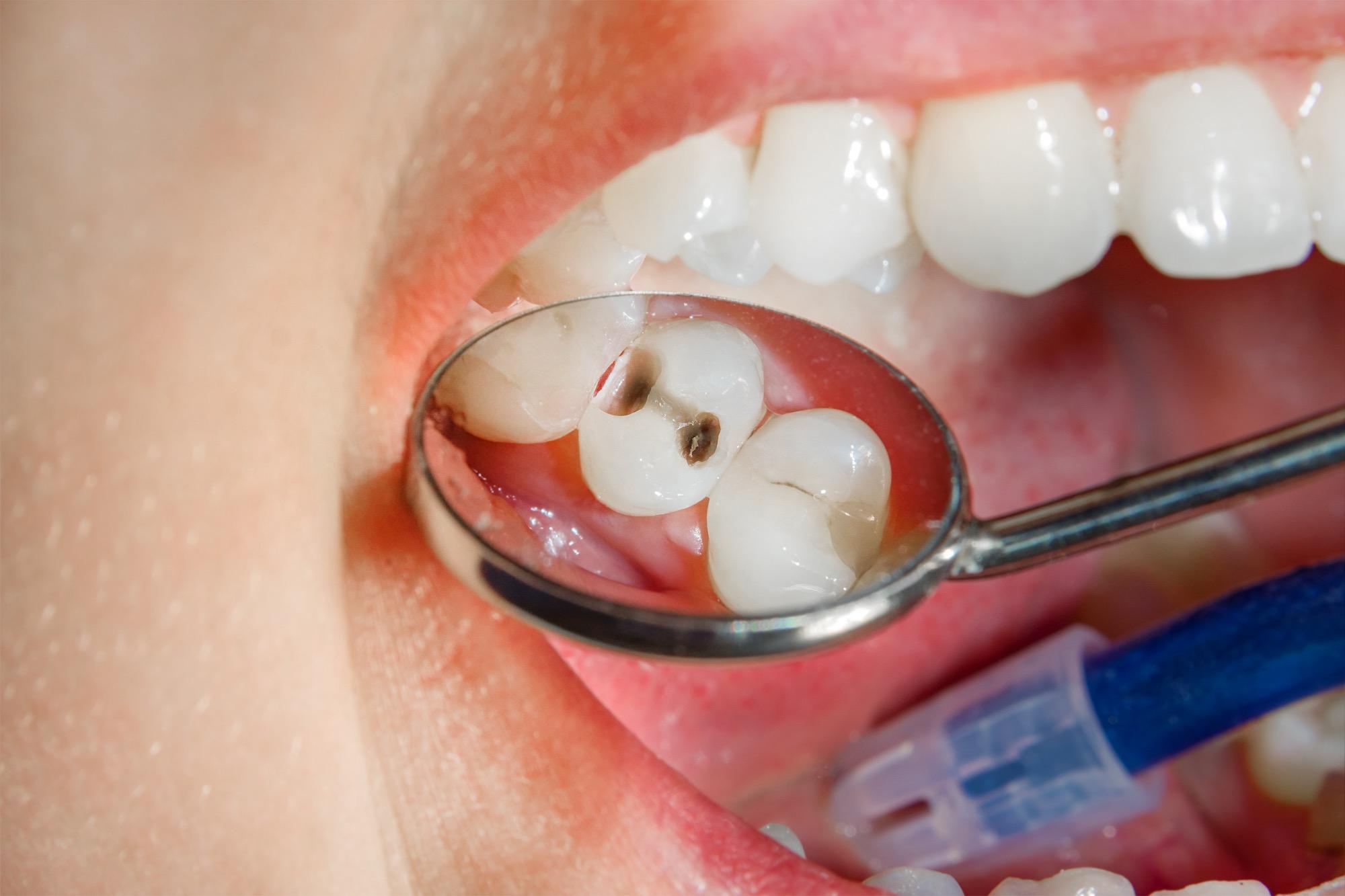Eine Füllung mit Komposit ist ein aufwendiger Prozess. Denn hier kommt es auf die Präzision an. Zuerst muss der Zahn vorbereitet werden. Das kann bedeuten, dass wir eine alte Füllung entfernen (Zum Beispiel eine Amalgamfüllung). Oder Ihren Zahn von Karies befreien müssen. Im Anschluss bereiten wir ihn durch das Auftragen eines speziellen Gels auf die Verbindung mit dem Komposit vor.