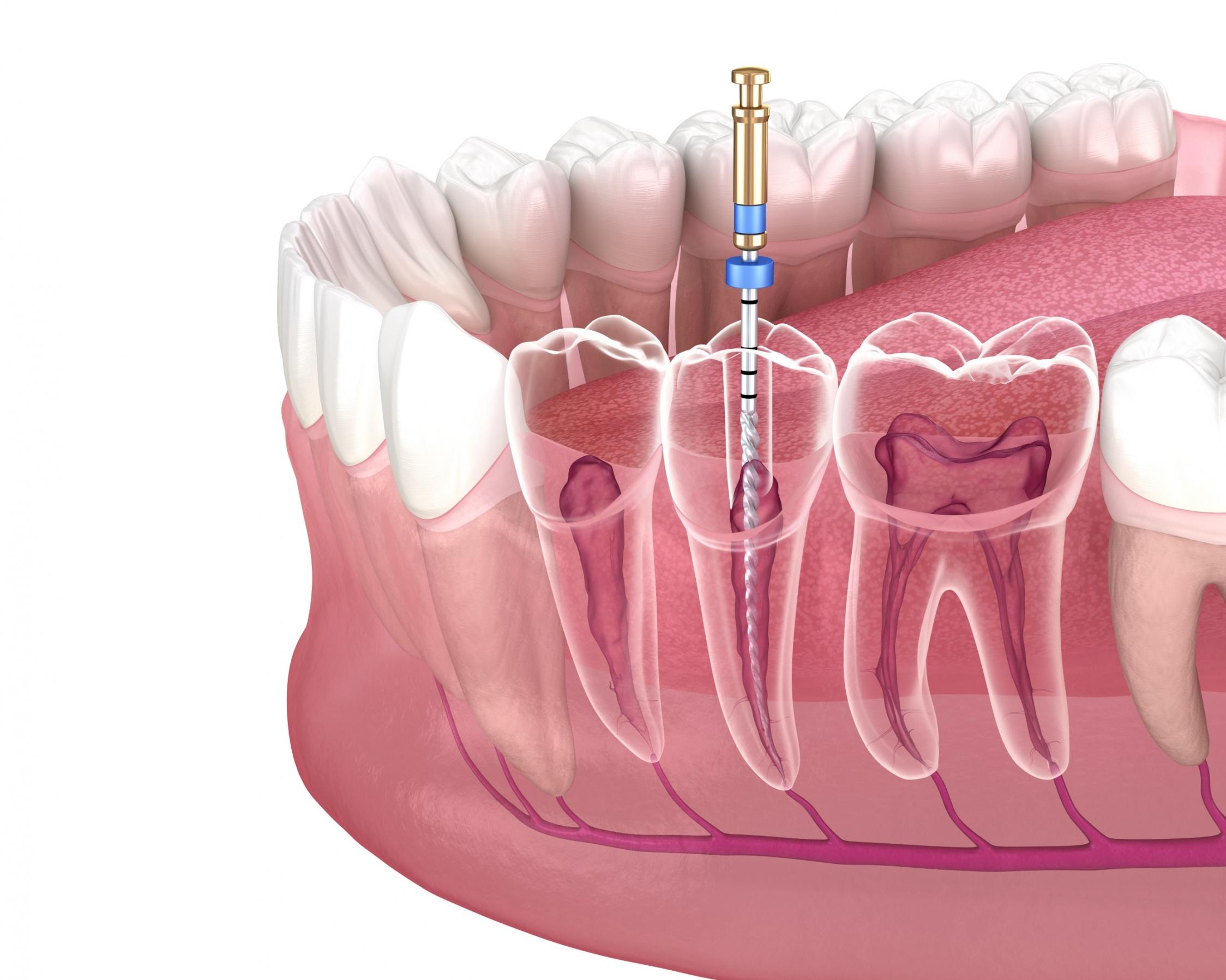 Unterschiedliche Zähne verfügen über eine unterschiedliche Anzahl von Zahnwurzeln. Backenzähne haben meist zwei, die großen bis zu vier Wurzeln. Schneidezähne und Eckzähne in der Regel nur eine Wurzel.