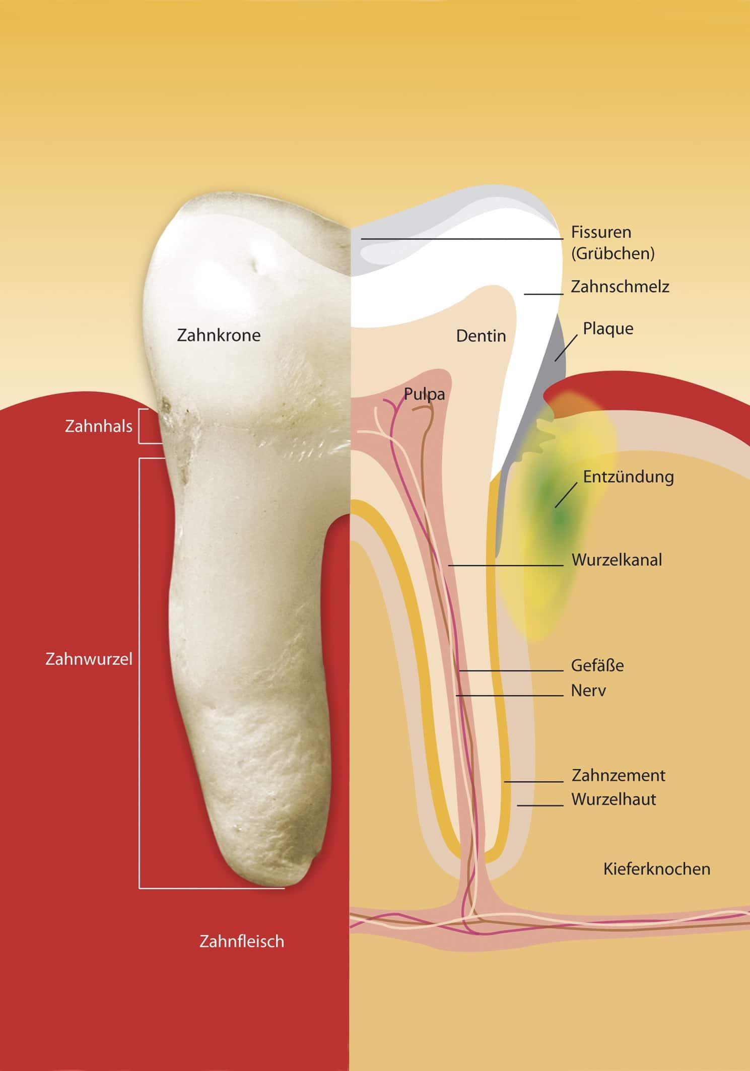 illustration parodontitis Zahnfleischentzündung