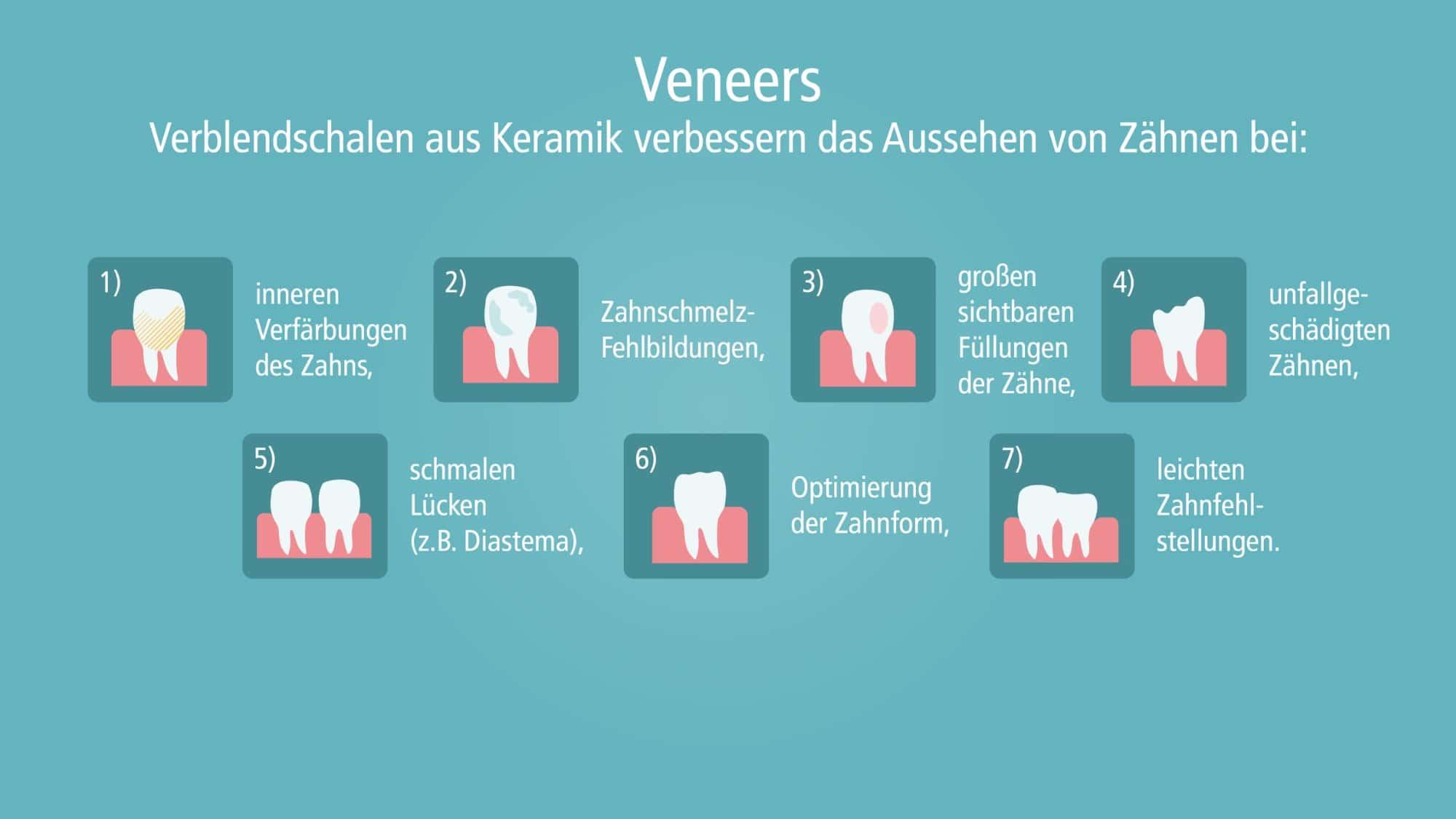 Als Veneers werden hauchdünne Keramikschalen aus zahnfarbener Keramik bezeichnet. Der Zahnarzt kann sie zum Beispiel bei einem verfärbten Zahn, vorhandenen Lücken zwischen den Zähnen, bei größeren Defekten oder abgebrochenen Ecken auf den Zahn aufkleben. Veneers geben dem Zahn sein natürliches Aussehen zurück. Der Zahnarzt muss dabei weniger gesunde Zahnsubstanz abtragen als bei klassischem Zahnersatz wie z.B. einer Krone.