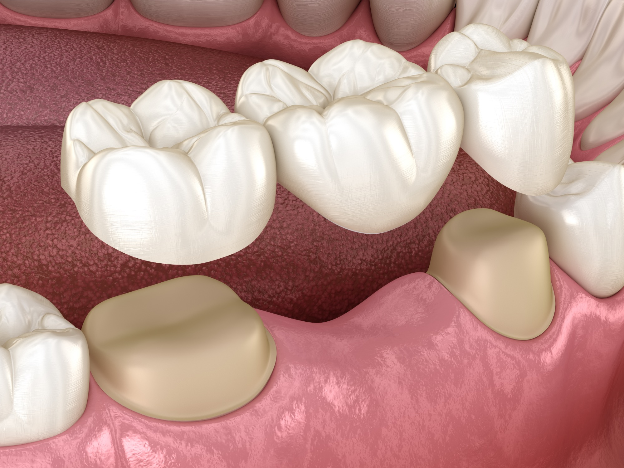 Dental,Bridge,Of,3,Teeth,Over,Molar,And,Premolar.,Medically